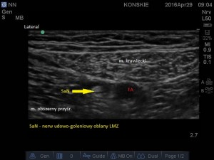 Blokada nerwu udowo-goleniowego (kanał przywodzicieli). Nerw udowo-goleniowy oblany LMZ