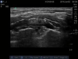 Splot ramienny w okolicy nadobojczykowej. Tętnica grzbietowa łopatki