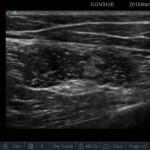 Sonoanatomia nerwu kulszowego - dostęp podpośladkowy (przekrój poprzeczny)