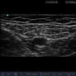 Sonoanatomia nerwu udowo-goleniowego (kanał przywodzicieli)