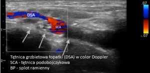 Tętnica grzbietowa łopatki w color Doppler