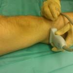 Blokada nerwu udowo-goleniowego w obrębie goleni (poniżej kolana)