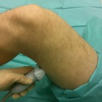 Lokalizacja nerwu kulszowego - okolica podkolanowa