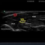 Sonoanatomia nerwu pośrodkowego  (środek przedramienia)