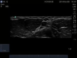 Sonoanatomia splotu ramiennego (dostęp pachowy)