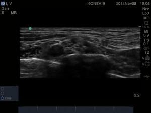 Sonoanatomia splotu ramiennego w okolicy nadobojczykowej