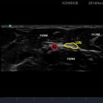 Sonoanatomia nerwu łokciowego na poziomie przedramienia