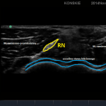 sonoanatomia nerwu promieniowego na poziomie  szczeliny stawu łokciowego