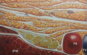Blokada n. udowego (FN - n. udowy, FA,FV - tętnica i żyła udowa, IPM - m. biodrowo-lędźwiowy, FL - powięź szeroa, FI - powięź biodrowa)