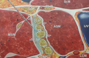 Blokaada splotu ramiennego z dostępu pomiędzy mięśniami międzypochyłymi (BP - splot, ASM, MSM - mięśnie pochyłe przedni i środkowy, PhrN - n. przeponowy, SCP - splot szyjny, ScM - m. mostkowo-obojczykowo-sutkowy, LCM - m. długi szyi, IJV - żyła szyjna wew., TPC7 - wyrostek poprzeczny C7)