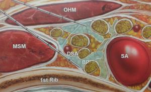 Blokada splotu ramiennego z dostępu nadobojczykowego (OHM - m. łopatkowo-gnykowy, MSM - m. pochyły środkowy, BP - splot ramienny, DSA - tętnica grzbietowa łopatki, SA - tętnica podobojczykowa)