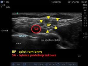 Sonoanatomia splotu ramiennego -  dostęp nadobojczykowy