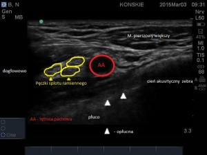 Sonoanatomia splotu ramiennego - costoclavicular approach