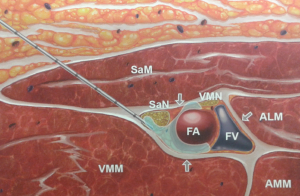 Blokada w obrębie kanału przywodzicieli (SaN - nerw udowo goleniowy, VMN - Vastus Medialis Nerve, FA, FV - tętnica i żyła udowa, SaM - mięsień krawiecki, VMM - mięsień obszerny przysrodkowy, AMM - m. przywodziciel wielki), ALM - m. przywodziciel długi