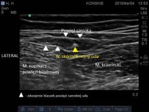Sonoanatomia nerwu skórnego bocznego uda