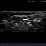 Hipoechogeniczny pień splotu ramiennego
