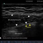 Blokada pochewki mięśnia prostego brzucha - sonoanatomia