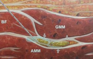 Blokada nerwu kulszowego w okolicy podposladkowej (GMM - m. pośladkowy wielki, BF - m. dwugłowy uda, AMM - m. przywodziciel wielki)