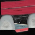 Sonoanatomia przestrzeni  przykręgowej(płaszczyzna strzałkowa, parasagittal approach)