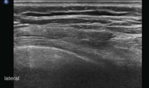 Sonoanatomia - projekcja w płaszczyźnie poprzecznej