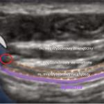 Sonoanatomia przestrzeni międzyżebrowej - czerwony okrąg wskazuje miejsce depozycji anestetyku