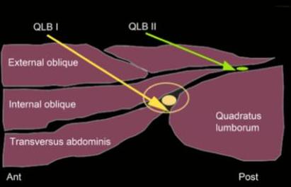 QLB I oraz II - miejsce depozycji anestetyku