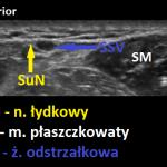 N. łydkowy - sonoanatomia