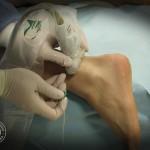 N. łydkowy - ułożenie głowicy