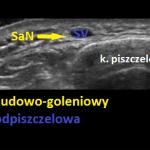 N. udowo-goleniowy - sonoanatomia