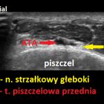N. strzałkowy głęboki - sonoanatomia